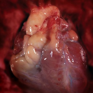 picture-of-a-real-human-heart